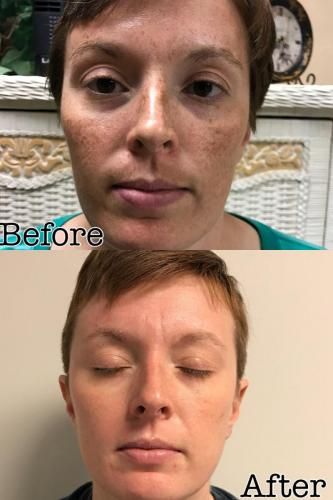Pigmentation Correction